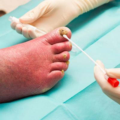 leczneie-grzybicy-paznokcia